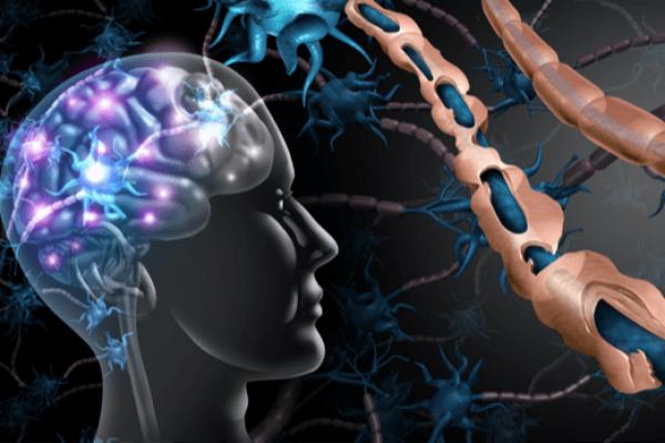 Cannabinoids- Multiple-Sclerosis-min